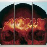 Steigbild X, 1997, A/D/A - Process, Acrylic, Steel, 300 x 375 cm (3 parts), Unique